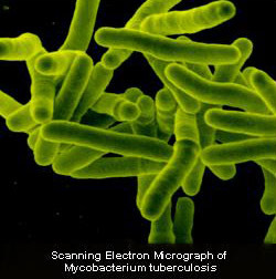 Bactéries Mycobacterium tuberculosis (crédit : Tuberculosis Research Section)